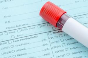 blood test, CannaLinq CBD Oil Blog